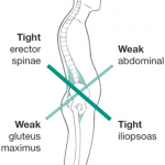Exercises to Correct Tight Hip Flexors: Undoing Effects of Sitting All Day