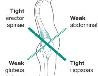 3 Outstanding Exercises to Correct Tight Hip Flexors