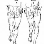 Hip Extension and Mobility for Runners: Prevent IT Band Syndrome