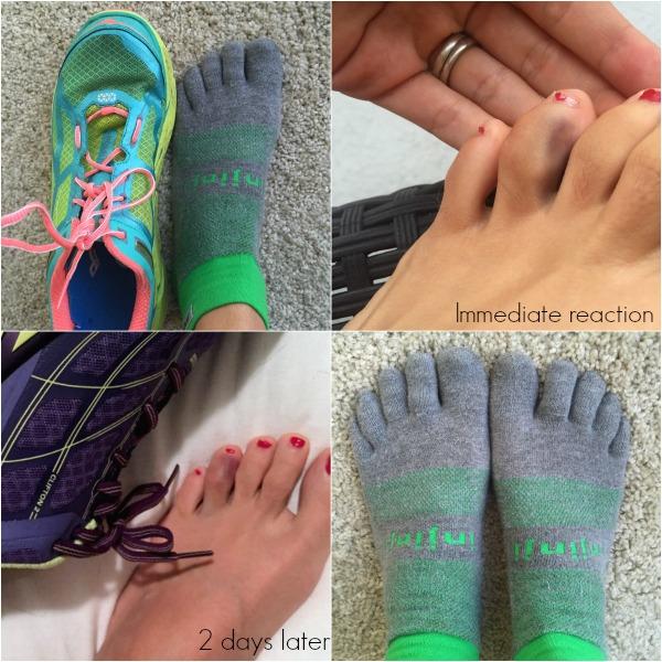 running toe pain