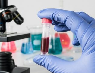 Blood Test for Athletic Performance: Inside Tracker Review