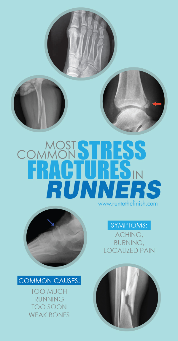 Understanding the most common stress fractures in runners - what causes them and how to return to running after injury