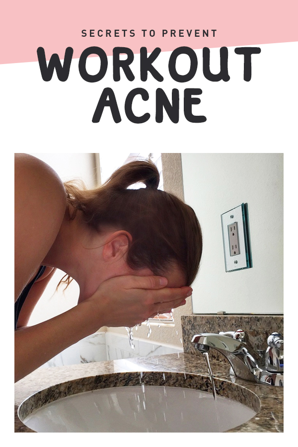 workout acne