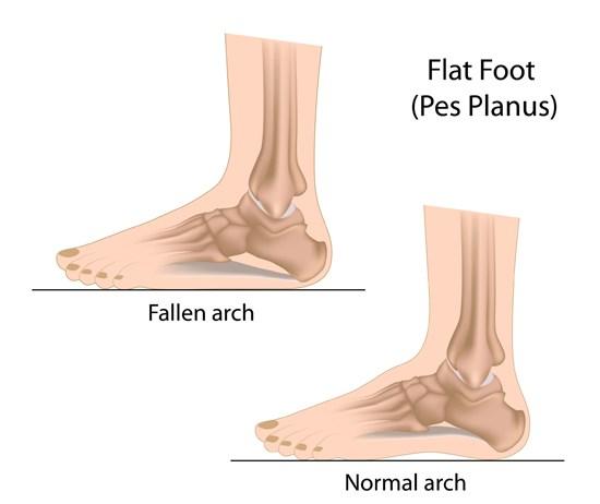 Running with Flat Feet